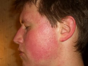 a man with keratosis pilaris on his face