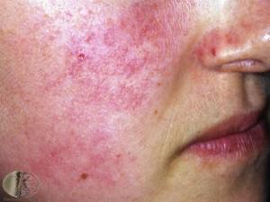 keratosis pilaris on the face