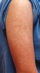 Thumbnail image for Common keratosis pilaris on arms
