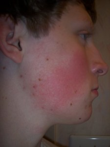Thumbnail image for Kerotosis Pilaris vs. Other Skin Conditions