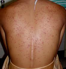 Thumbnail image for Keratosis Pilaris on the Back